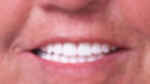 protezy zębowe całkowite - Nova strong
