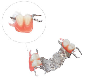 Proteza-szkieletowa-estetyczna-sg.jpg