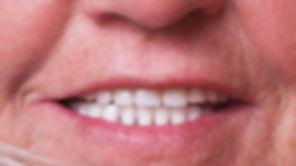 protezy zębowe akrylowe całkowite