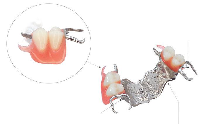 proteza zębowa szkieletowa estetyczna