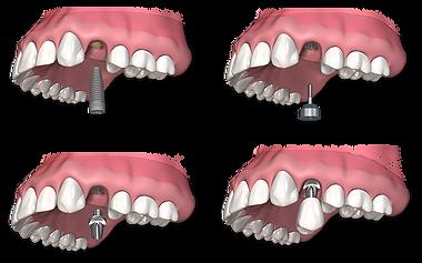single-dental-implant-procedure.png