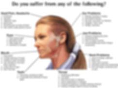 TMJ-Diagram.jpg