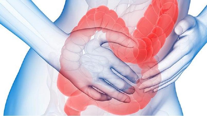 Food Intolerances & Gut Health