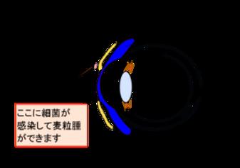 K-clinic-眼瞼麦粒腫-png-300x211.png