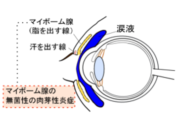 K-clinic-眼瞼霰粒腫png-300x211.png