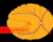 K-clinic -萎縮型加齢黄斑変性-300x239.png