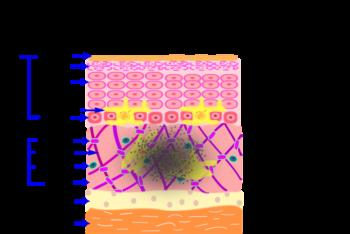 K-clinic-後天性メラノサイトーシス-断層-1-e149966289571