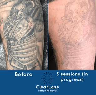 Laser Tattoo Removal Sheffield