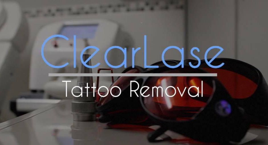 Alternative Tattoo Removal Methods