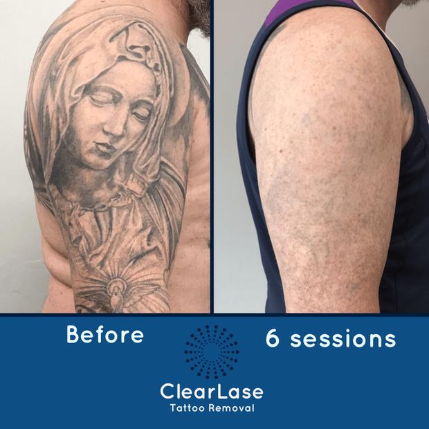 Laser Tattoo Removal Sheffield