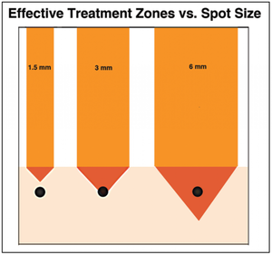 Size Matters - How Spot Size Affects Your Tattoo Removal