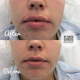Lip Dermal Filler Result