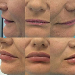 Lip Enhancement and Lip Volume Increase