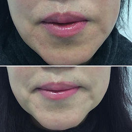 Chin and Jaw line correction