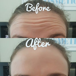 Forehead Aniti wrinkle Injection Result