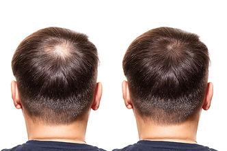 hair loss. Care Concept. transplantation