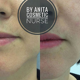 Chin and Jaw line Correction by Dermal Filler