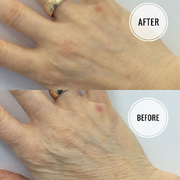 Skin Booster Injection Result on Hands