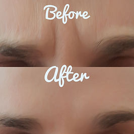 Frown Line Anti wrinkle Injections Result