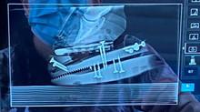 Farrier Report: Glushu incorporated into complex shoe.