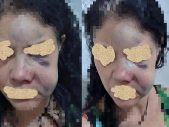 Homem é preso pela Policia Civil de Jaraguá após agressão contra a sua companheira