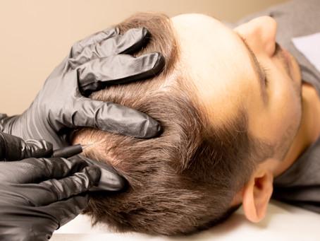4 Popular Med Spa Treatments for Men