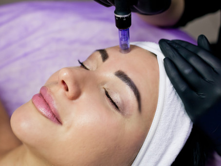 What is Microneedling with PRP?