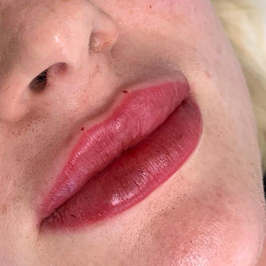 1ml Lip Filler
