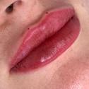 Lip Filler 1ML