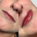 0.5ml Lip Filler