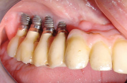 Today, let's talk about Dental Implants: to do or not to do