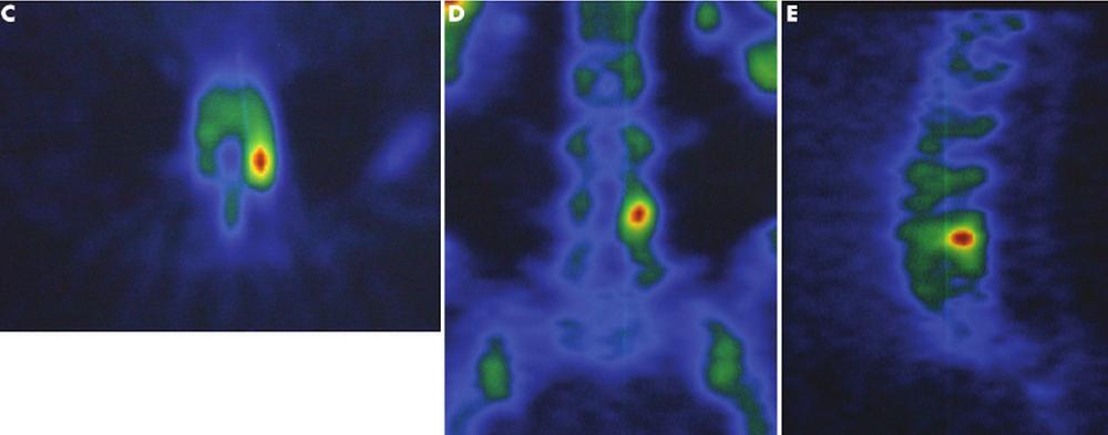 Imaging showing SPECT Scan appearances when Spondylolysis is present