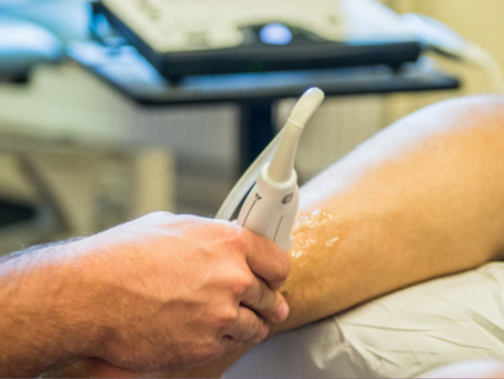 The Role of Diagnostic Ultrasound in Upper Limb Conditions!