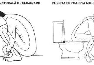 Poziția pe Toaletă și Bolile