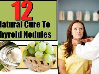 Cură naturală pentru Nodulii glandei Tiroide
