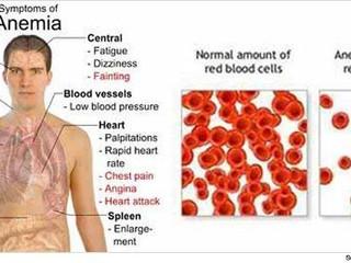 Anemia Pernicioasă