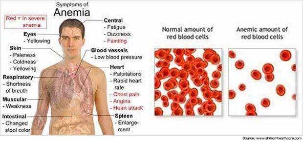anemie pernicioasa tratament)