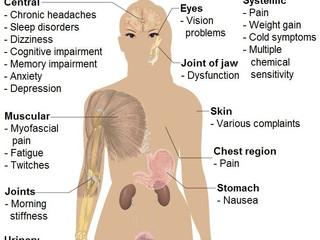 Am Fibromialgie