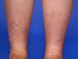 Semne cutanate ale bolilor Tiroidiene