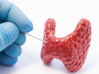 Patologia Chirurgicală a Tiroidei I