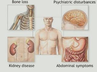 Hiperparatiroidism - cauze, simptome, diagnostic, tratament
