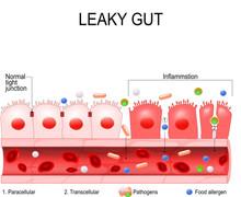 Să înțelegem Intestinul Permeabil - Leaky Gut