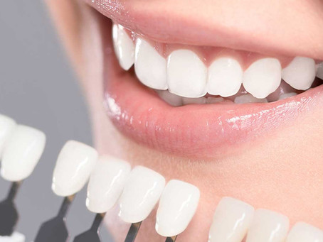 Get Whiter Teeth at your Home!!