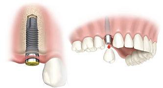 dental-implant-beverly-hills (1).jpg
