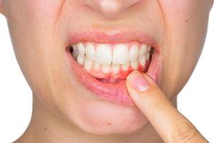 gum_disease_reza moghbel dds.jpg