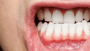What-You-Need-to-Know-About-Gum-Disease-