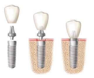 dental implants bakersfield.jpg