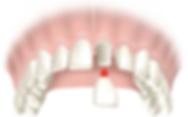 dental crown reza moghbel dds.png