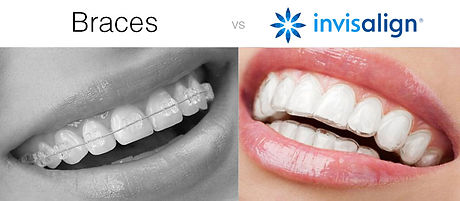 invisalign-vs-braces-2.jpg