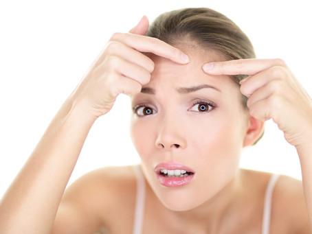 Consejos para cuidar tu piel del acné durante el verano